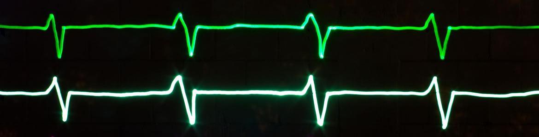 heartbeat_header